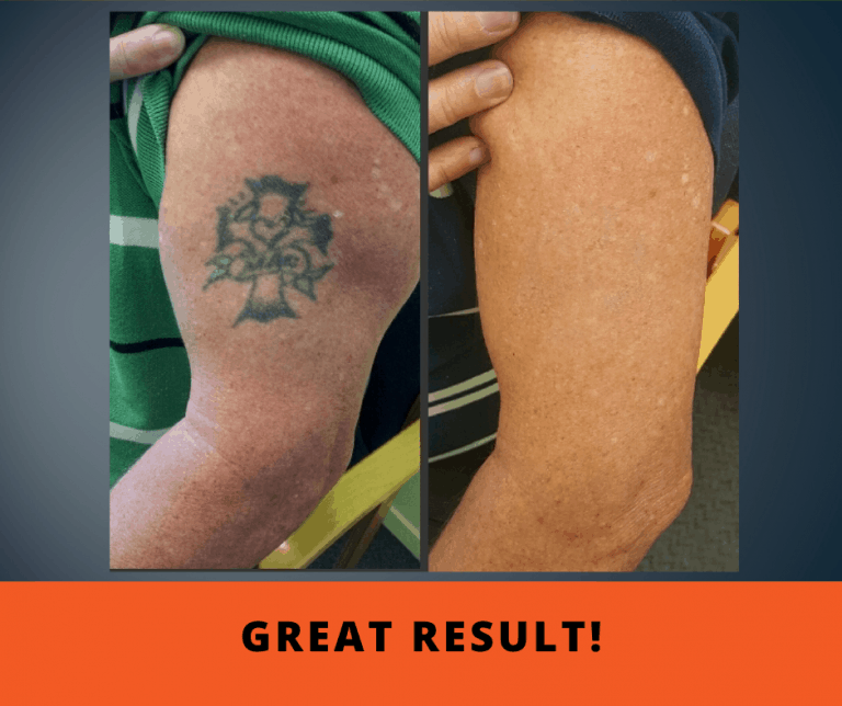 Remove Your Tattoo Expert Laser Tattoo Removal
